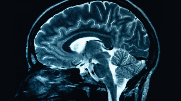 Electroconvulsive Therapy Can Reduce Depression and Prevent Relapse in Older Adults